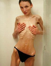 Skinny Anorexic..